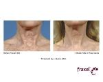 Лечение постакне, шрамов, рубцов, морщин,растяжек (стрий)